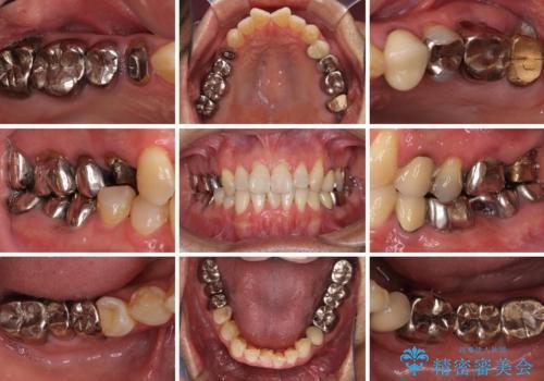 折れてしまった奥歯 インプラントによる補綴治療の治療前