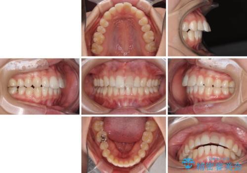 気になる前歯を治したい インビザライン矯正とオールセラミッククラウンの治療前