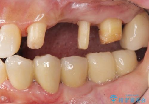 歯周病 側方力に対抗するブリッジ補綴の治療中