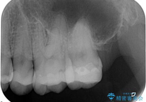 虫歯の治療(セラミックインレー)の治療前