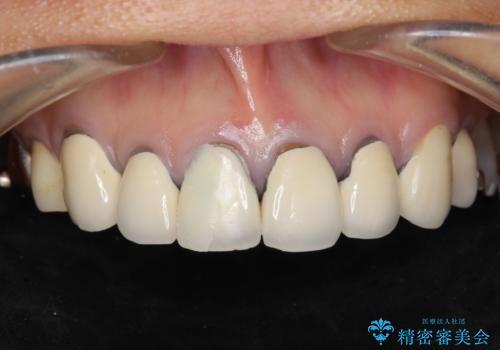 [ 歯ぐきの黒ずみ ] ジルコニアクラウンによる審美改善の治療前