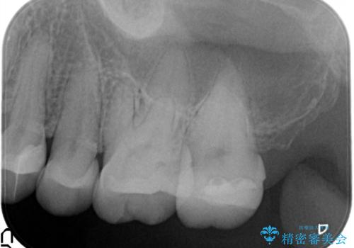 虫歯の治療(セラミックインレー)の治療後