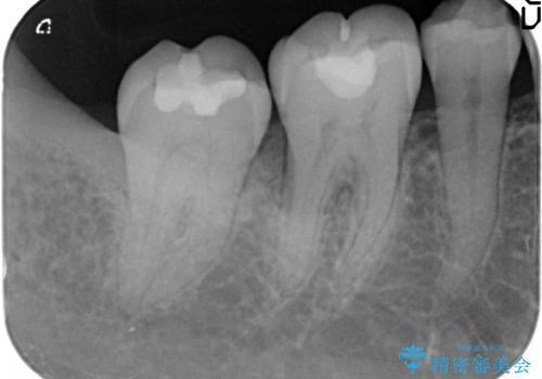 歯周病 再生治療で歯を残すの治療前