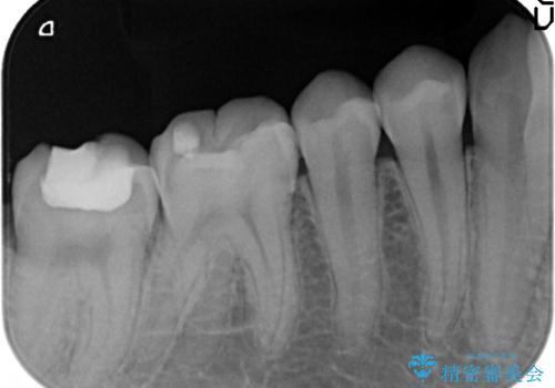セラミックインレー 銀歯を白い歯への治療後