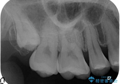 セラミックインレー 冷たいものがしみる奥歯の治療の治療前