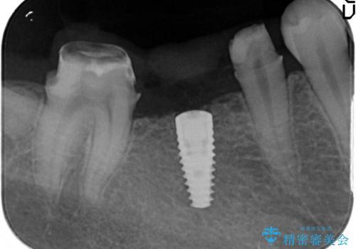 臼歯インプラント補綴の治療中