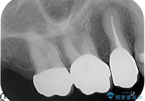 オールセラミッククラウン しみる歯の治療の治療後