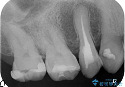 オールセラミッククラウン しみる歯の治療の治療前