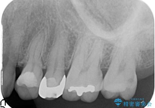 オールセラミッククラウン 痛みが治まらない歯の治療の治療前