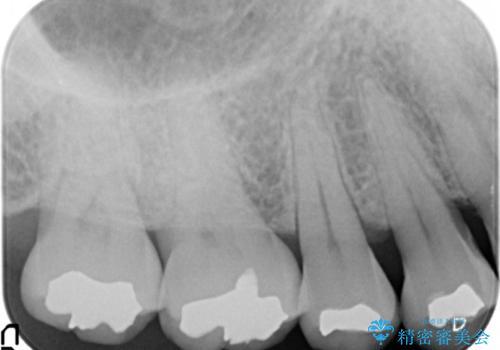銀歯の引っかかり 化学的に安定したゴールドインレー修復の治療前