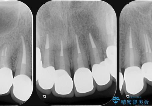 [ 歯ぐきの黒ずみ ] ジルコニアクラウンによる審美改善の治療後