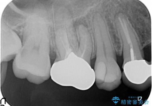オールセラミッククラウン 他院にて治療困難と言われた歯の治療の治療前