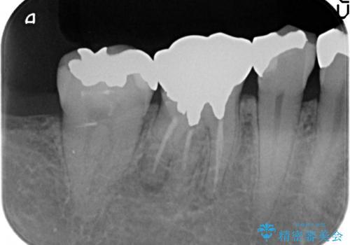 オールセラミッククラウン 他院にて根管治療を勧められた歯の治療の治療前