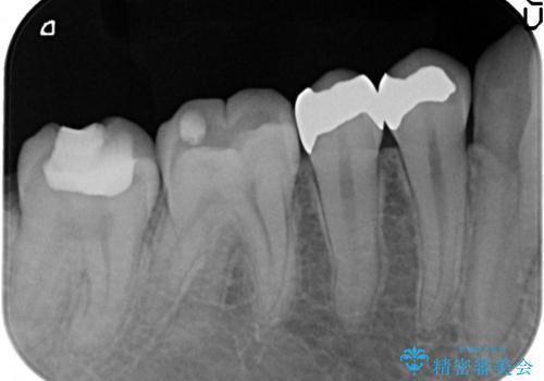 セラミックインレー 銀歯を白い歯への治療前