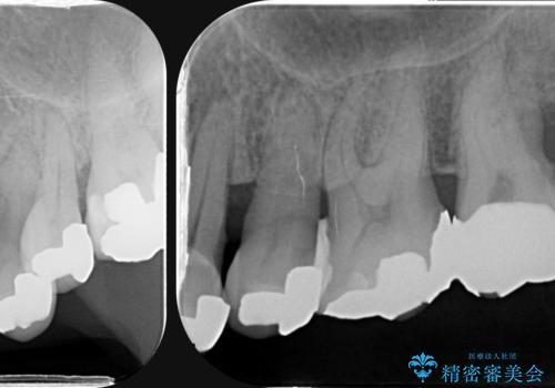 歯周病 側方力に対抗するブリッジ補綴の治療前