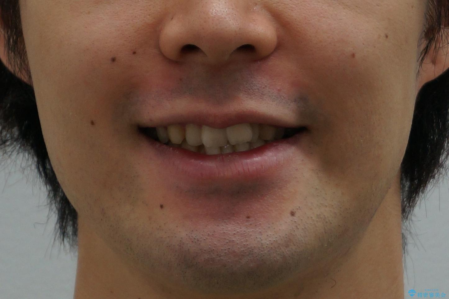 前歯のがたつき・すれちがい咬合を非抜歯で。流行の、格安マウスピースでは難しい、ワンランク上の治療の治療前(顔貌)