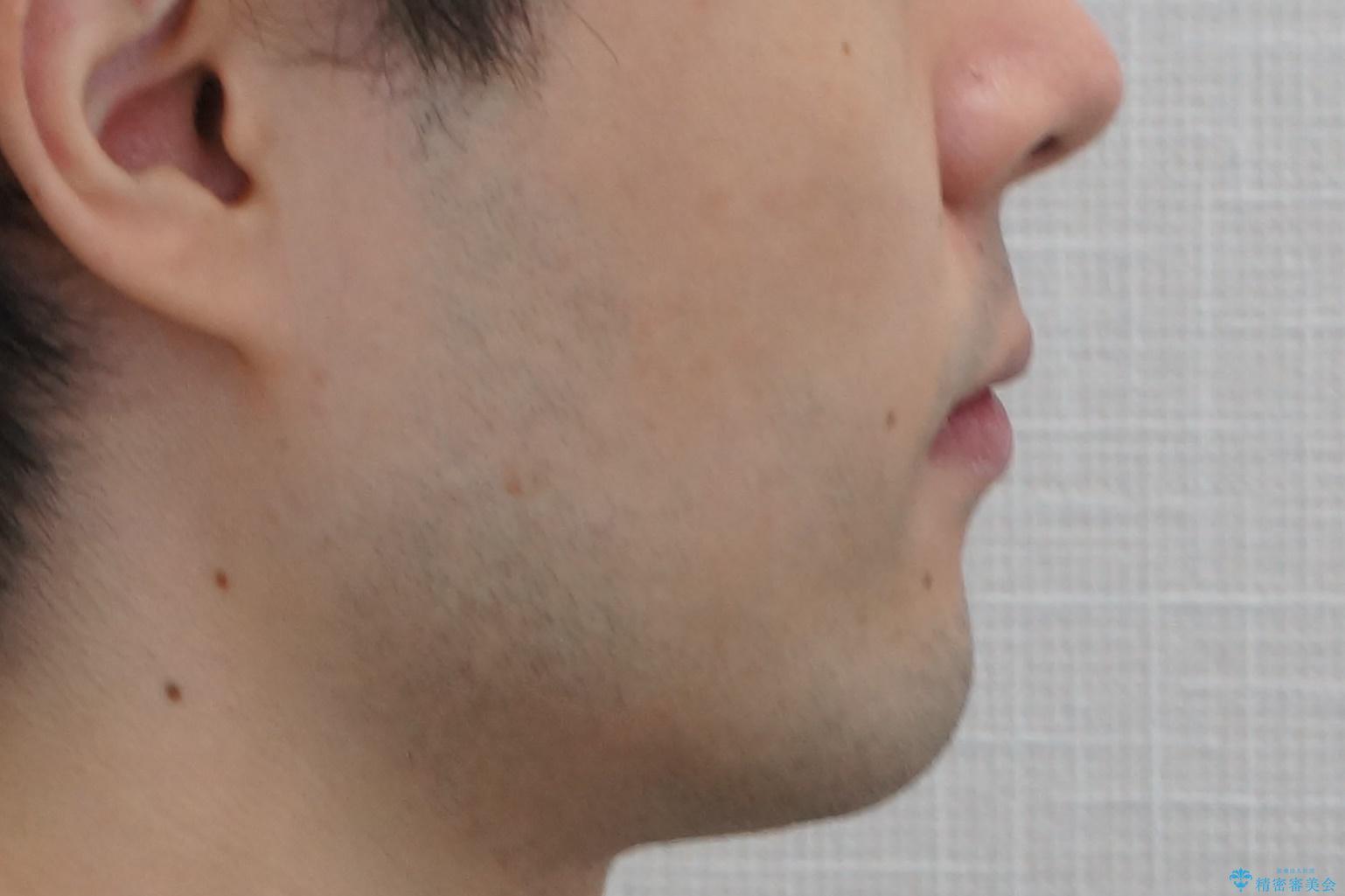 前歯のがたつき・すれちがい咬合を非抜歯で。流行の、格安マウスピースでは難しい、ワンランク上の治療の治療後(顔貌)