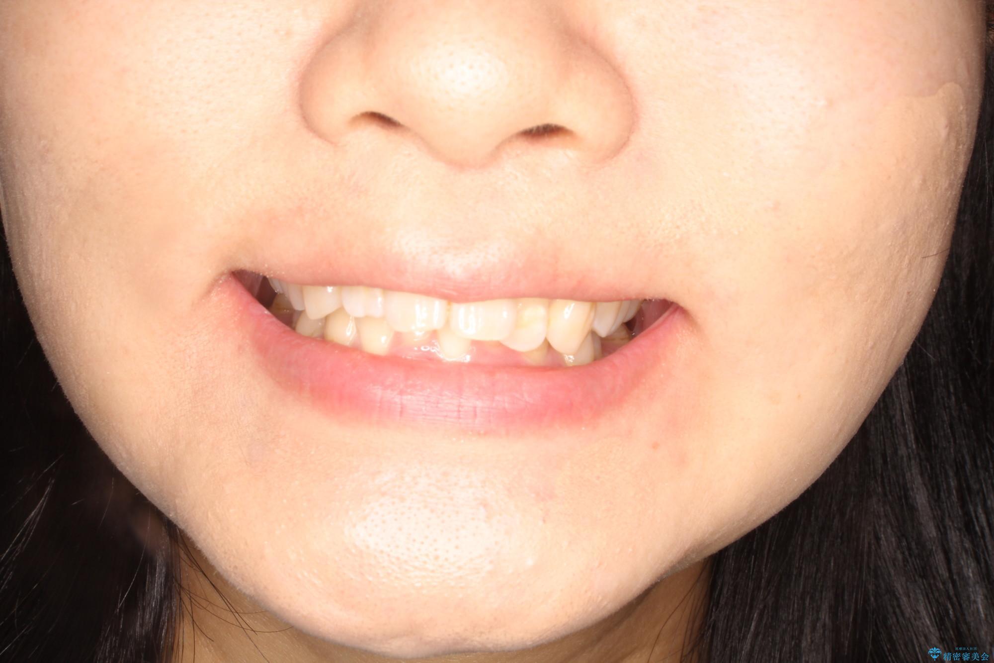 前歯の突出、深い噛み合わせ、ガタつきをマウスピース矯正(インビザライン)で治療した症例の治療前(顔貌)