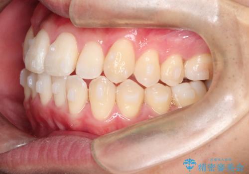 前歯のクロスバイトとガタつきをマウスピース矯正(インビザライン )で治療した症例の治療中