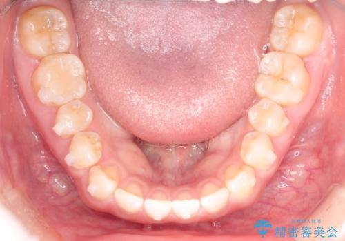 前歯の隙間を閉じたい インビザラインによる矯正の治療中