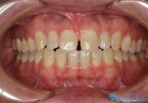 前歯の真ん中の隙間を閉じたい インビザラインによる目立たない矯正の症例 治療前