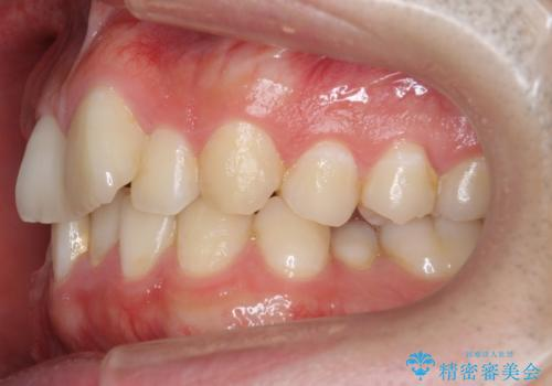 前歯のがたつき・すれちがい咬合を非抜歯で。流行の、格安マウスピースでは難しい、ワンランク上の治療の治療前