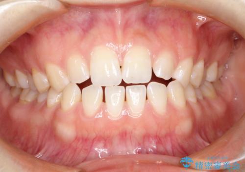 前歯の隙間を閉じたい インビザラインによる矯正の症例 治療前