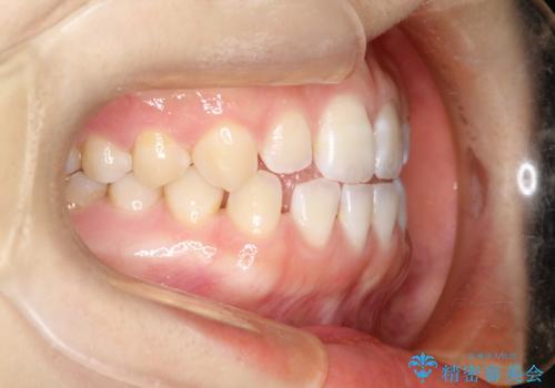 前歯の隙間を閉じたい インビザラインによる矯正の治療前