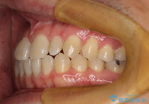 前歯の真ん中の隙間を閉じたい インビザラインによる目立たない矯正の治療前