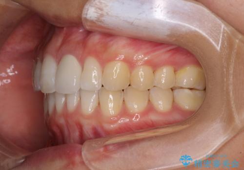 気になる前歯を治したい <span class=