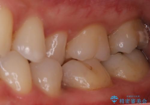 虫歯をセラミックで治療の治療前