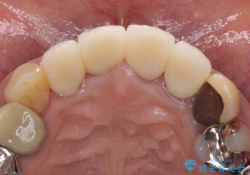 汚れてしまった保険のクラウン 前歯のオールセラミックの治療後