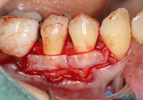 徐々に下がってきた歯肉へ再生療法(歯冠側移動術と結合組織移植術の併用)を施術し、丈夫な歯肉を獲得させた症例の治療前