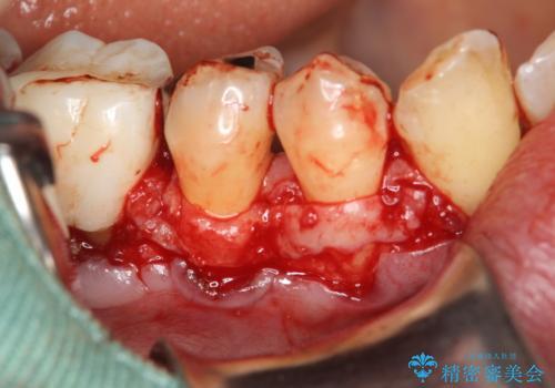 徐々に下がってきた歯肉へ再生療法(歯冠側移動術と結合組織移植術の併用)を施術し、丈夫な歯肉を獲得させた症例の治療中