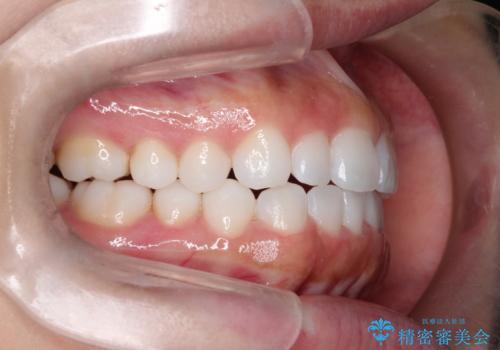 インビザラインを用いた叢生(歯並びのガタつき)の治療の治療後
