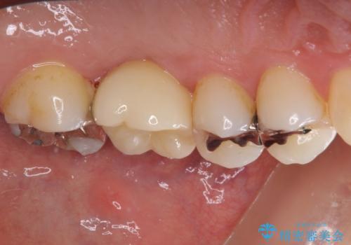 抜歯になった虫歯 奥歯のインプラント治療の治療後