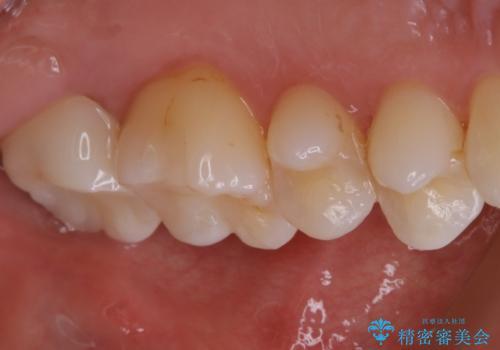 虫歯をセラミックで治療の治療後