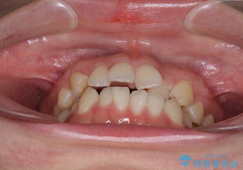 前歯のデコボコを治したい ワイヤー矯正の治療前