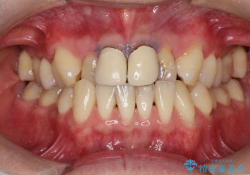 前歯の見た目が気になる 矯正・セラミックを組み合わせた治療の症例 治療前