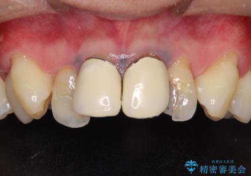 前歯の見た目が気になる 矯正・セラミックを組み合わせた治療の治療前