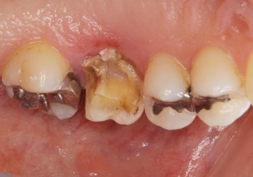 抜歯になった虫歯 奥歯のインプラント治療の治療前