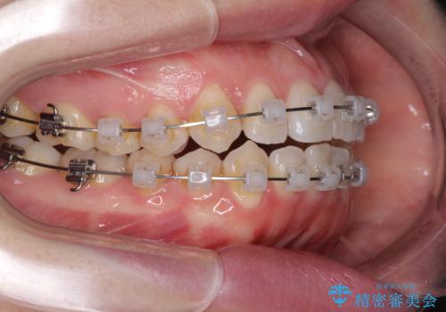 前歯のデコボコを治したい ワイヤー矯正の治療中