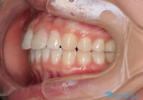 前歯クラウン(オールセラミック)の症例 治療前