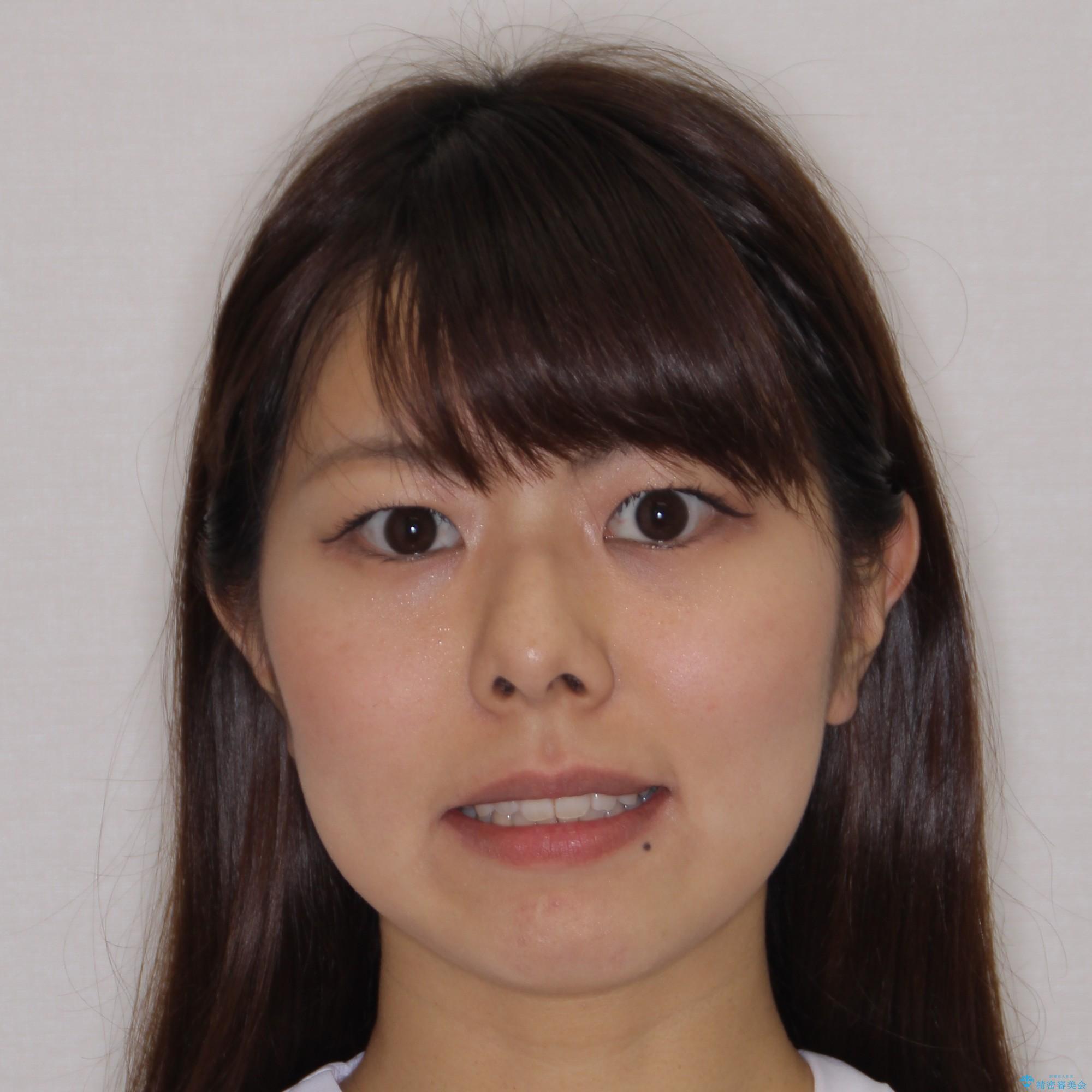 【モニター】 インビザラインによる後戻りの再矯正治療の治療後(顔貌)