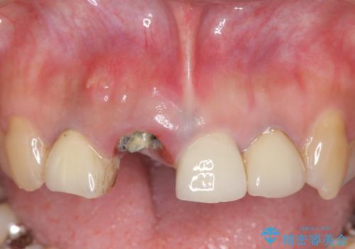 オールセラミッククラウン 折れてしまった前歯の治療の治療前