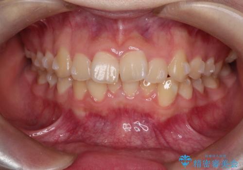 上下の前歯のガタガタを目立たず治したい インビザラインによる見えない矯正の治療中