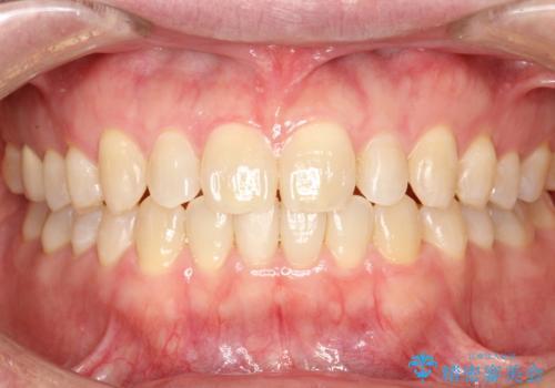 前歯の真ん中の隙間を閉じたい インビザラインによる目立たない矯正の症例 治療後