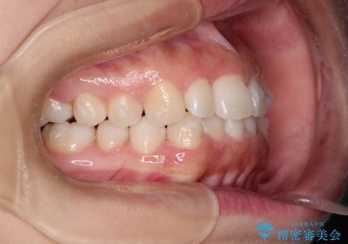 インビザラインを用いた叢生(歯並びのガタつき)の治療の治療中