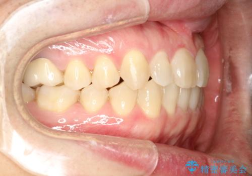 前歯の真ん中の隙間を閉じたい インビザラインによる目立たない矯正の治療後