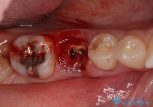 折れてしまった奥歯 下の奥歯のインプラント治療の治療前